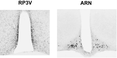 Figure 2: Coronal brain sections indicating the immunostaining of RP3V (left) and ARN (right) kisspeptin neurons, kisspeptin-immunoreactive cell bodies appeared as black dots.